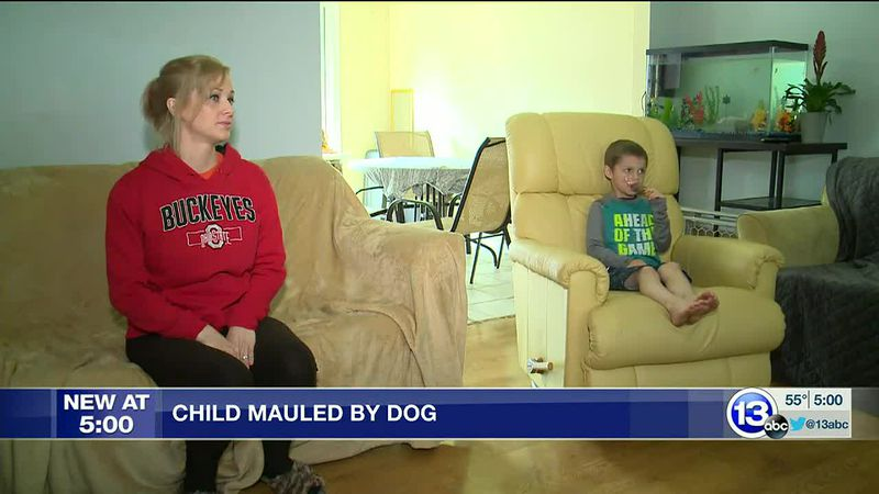 Child in Walbridge mauled by dog